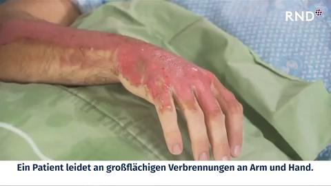 """Behandlung von Verbrennungen: Forscher entwickeln """"zweite Haut"""""""